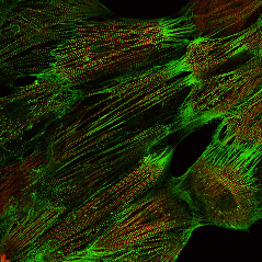 Fluorescent imaging of Pluricyte Cardiomyocytes